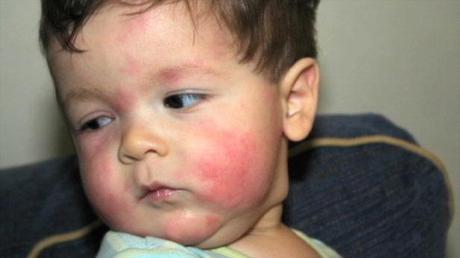 Overview of the common food allergies in children paperblog for Fish allergy rash pictures