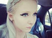 Real-Life Elf: Woman Cosmetic Surgery Look Like