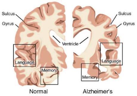 normal vs Alzehimer's brain
