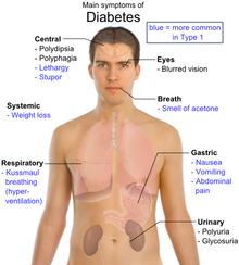 Main symptoms of diabetes