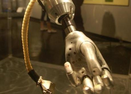 iRobot: The man with the smartphone built in to his prosthetic arm