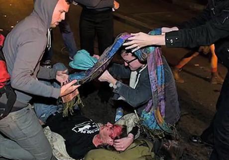 Occupy Oakland protestor Scott Olsen's skull fractured during police crack-down, OWS responds