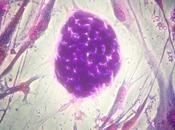 Stem Cells Boon Your Born Baby
