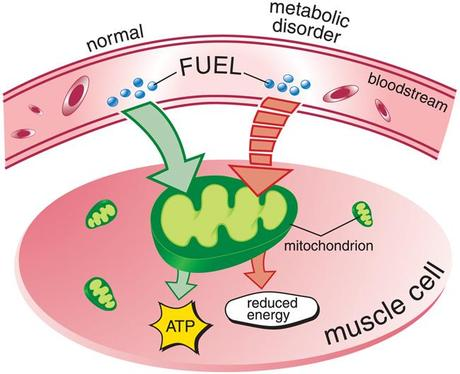 How Alcoholism Causes Muscle Weakness