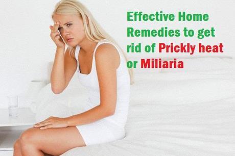 Miliaria Prickly heat remedies