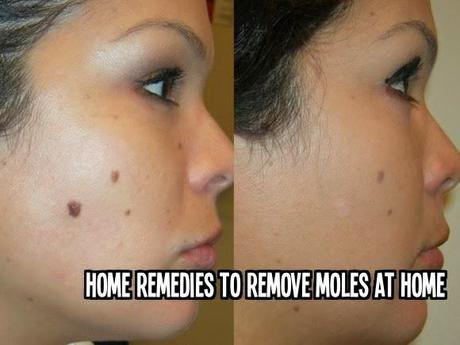 Home Remedies to Remove Moles at Home