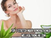 Remove Stretch Marks Mark Removal Remedies