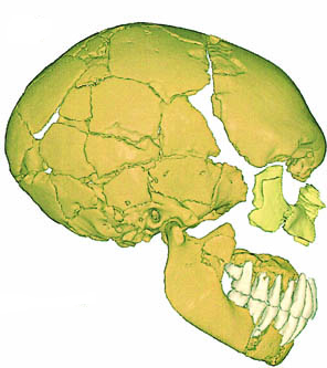 Le Moustier 1. Note the browridge, lack of chin and long skull; all classic Neanderthal traits