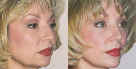 Cheek Augmentation - Before & After