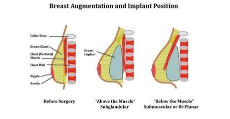 nice breast implants