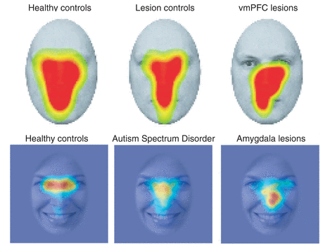 Social attention and our ventromedial prefrontal cortex.
