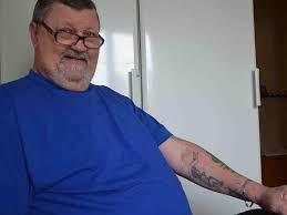 Needle lost in tattooist's body removed 40 years later