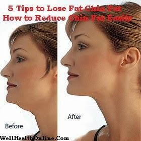 5 Tips to Lose Fat Chin - Discover How to Reduce Chin Fat Easily