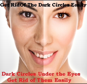 Get Rid of The Dark Circles Easily