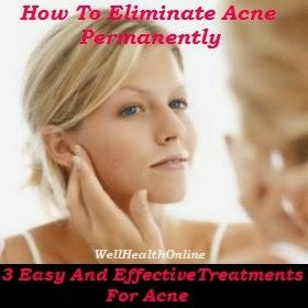 How to eliminate ancne permanently