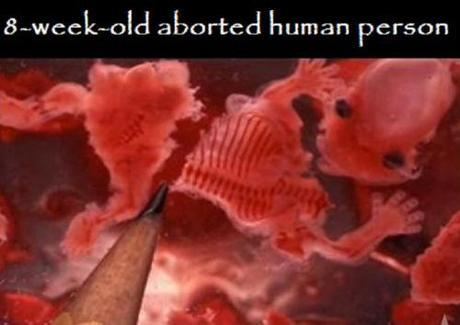 8-week-aborted-fetus