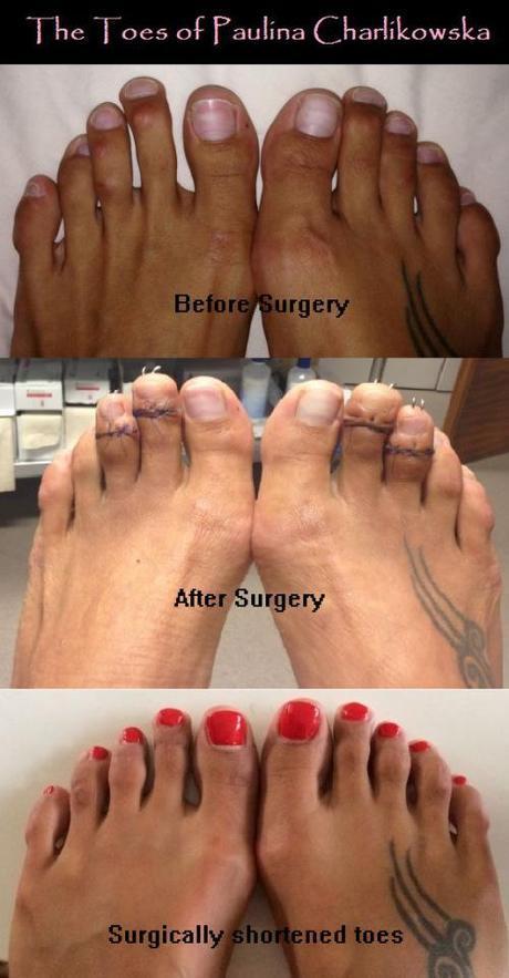 Paulina Charlikowska's toes