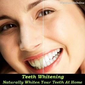 Naturally Whiten Your Teeth At Home
