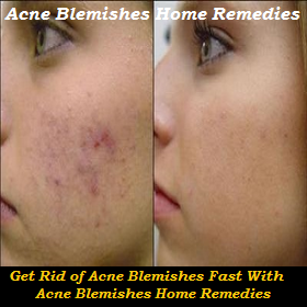 Acne Blemishes Home Remedies