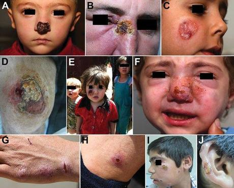 Patterns of leishmaniasis among Syrian refugees in Lebanon, 2012A,B) Lesions impinging and possibly hindering the function of vital sensory organs, including the nose and eyesC,D) Lesions ></div>5 cm.E,F) Lesions disfiguring the faceG,H) Special forms of cutaneous leishmaniasis; shown here is a patient with spread and satellite lesions on the hand and armI,J) Patient with 15 lesions.
