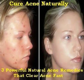 Powerful Natural Acne Remedies