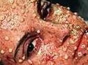 Pox: Return Smallpox
