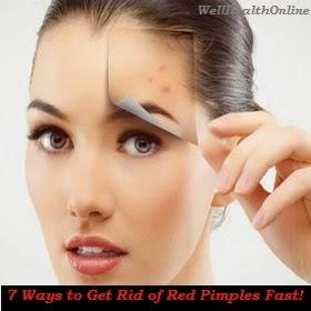 7 Ways to Get Rid of Red Pimples Fast!