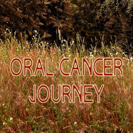 oral-cancer-journey