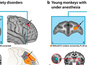 Early Life Anxiety Monkeys Humans Correlates with Connectivity Between Prefrontal Cortex Amygdala.